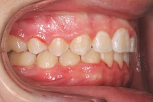 close-up of teeth after treatment