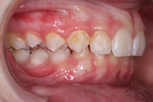 close-up of teeth before treatment